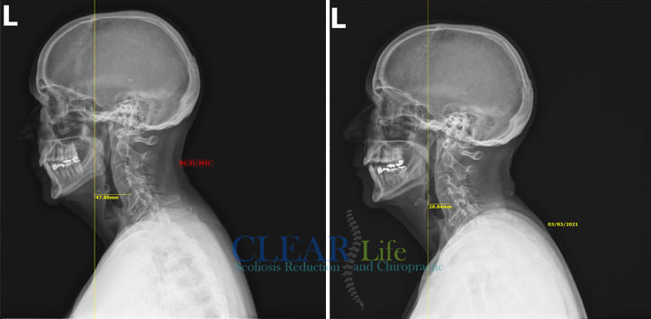 Chiropractic Huntersville NC Before and After